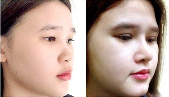 Cách kéo dài đầu mũi ngắn và hếch