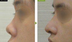 Cách khắc phục mũi tẹt mũi hếch hiệu quả