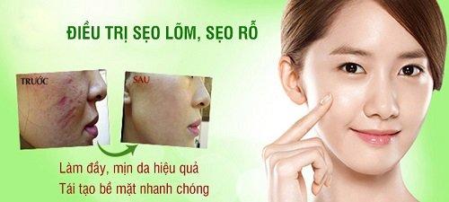 Điều trị sẹo rỗ tại Thẩm mỹ viện bác sĩ Hà Thanh
