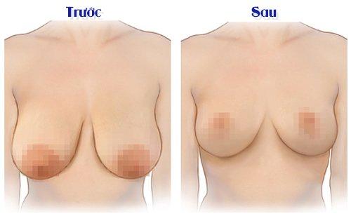 Cách khắc phục ngực chảy xệ ở các mức độ