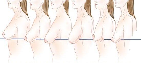 Ngực chảy xệ sau sinh là gì