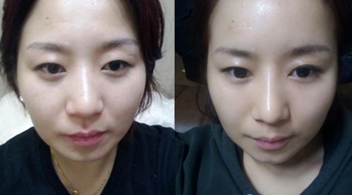 Hà Phương trước khi bấm mí mắt Hàn Quốc