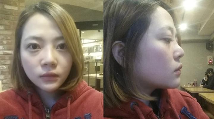 Huyền Anh trước khi nâng mũi bọc sụn Hàn Quốc