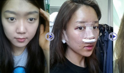 Khánh Hà ảnh trước sau thực hiện nâng mũi bọc sụn Hàn Quốc