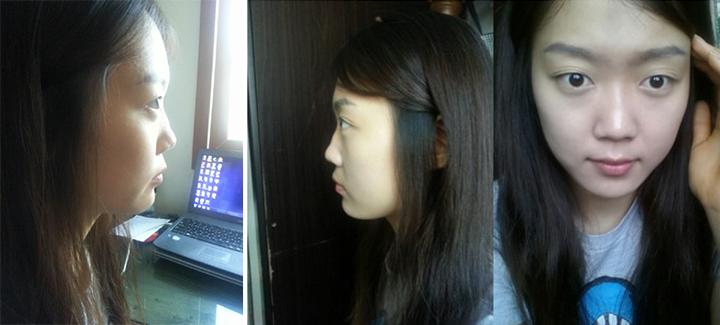 Khánh Hà tự ti về chiếc mũi tẹt