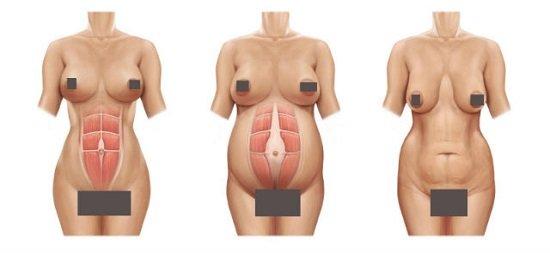 Nguyên nhân khiến ngực chảy xệ sau khi sinh