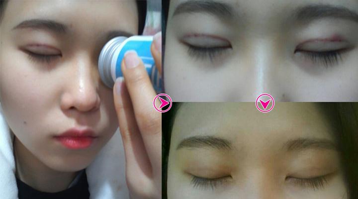 Linh Nga chăm sóc sau khi bấm mí mắt Hàn Quốc