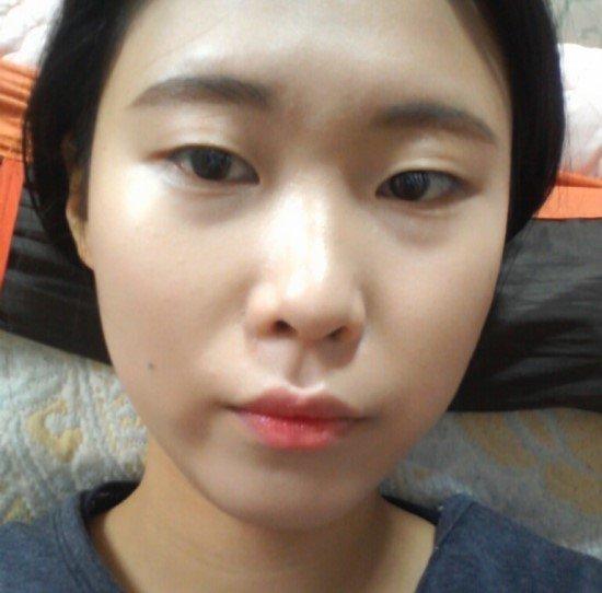 Linh Nga trước khi bấm mí mắt Hàn Quốc