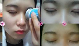 Linh Nga trước và sau khi bấm mí mắt Hàn Quốc tại Hà Thanh