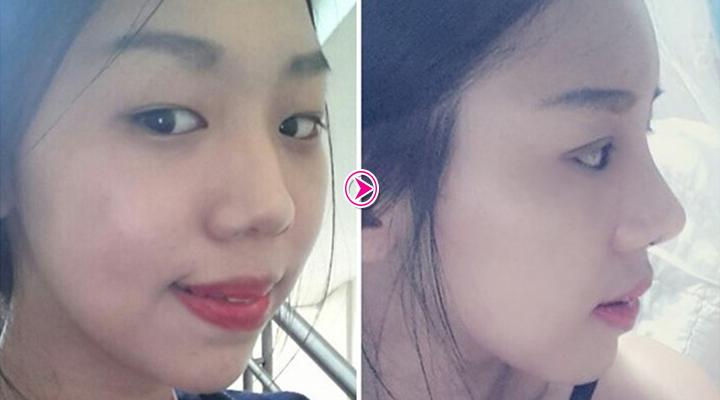 Thùy Trâm trước và sau khi nâng mũi S line 3D Hàn Quốc