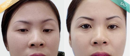 Khách hàng khắc phục chùng da mí mắt bằng phương pháp cắt mí mắt