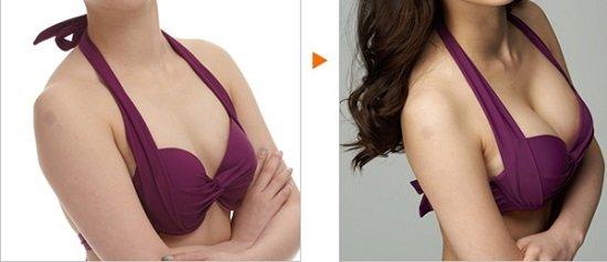 Kết quả trước và sau khi nâng ngực nội soi