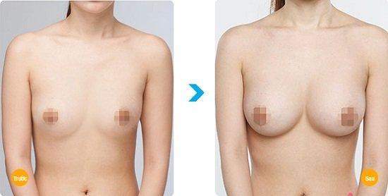 Trước và sau khi nâng ngực nội soi của cô nàng
