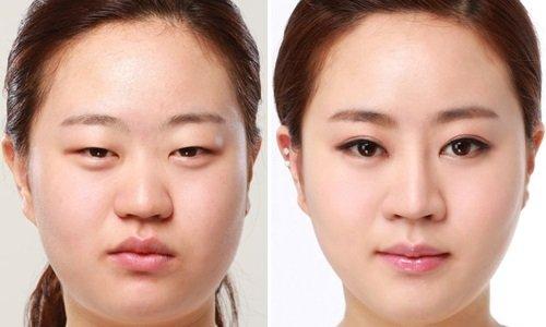 Tình duyên trở lại nhờ bấm mí mắt Hàn Quốc tại Hà Thanh