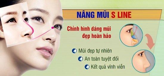 Phương pháp nâng mũi s line tạo hình bằng sụn