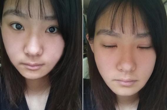 1 tháng sau bấm mí mắt Hàn Quốc của Thanh Huyền