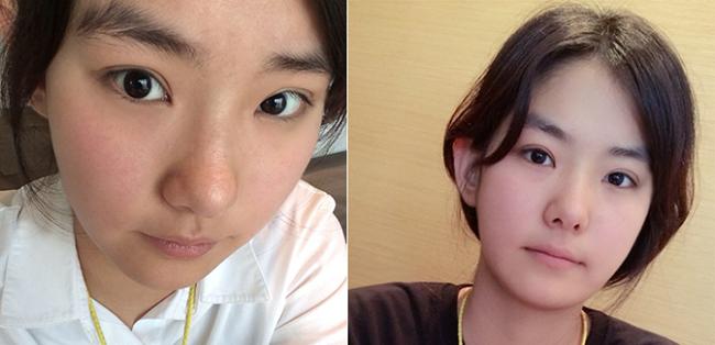 Thanh Huyền xinh đẹp sau 3 tháng bấm mí mắt Hàn Quốc