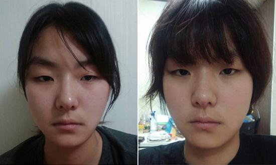 Thanh Huyền trước khi bấm mí mắt Hàn Quốc