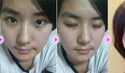 Thay đổi trước sau của Thanh Huyền về bấm mí mắt
