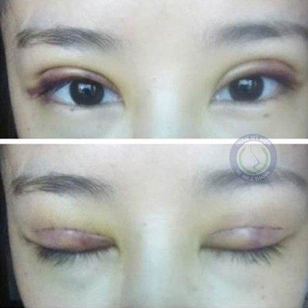 Mí mắt bị trợn sau khi cắt mí mắt