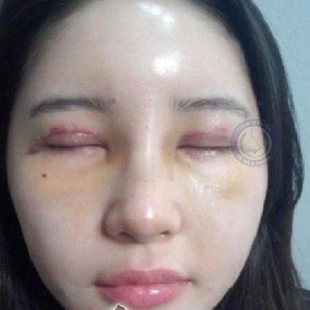 Mí mắt không đồng đều sau khi cắt mí mắt
