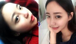 Quá trình thay đổi của Nhã Anh trước và sau khi nâng mũi bọc sụn tại Hà Thanh