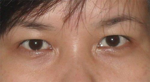 Sụp mí mắt sau khi cắt mí mắt