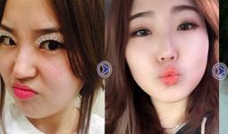 Toàn bộ quá trình thay đổi của Thu Phương trước sau cắt mí mắt