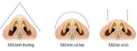 Thu nhỏ cánh mũi không phẫu thuật là gì