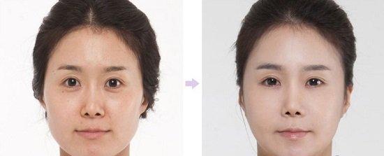 Cắt mí mắt kết hợp lấy mỡ mí là cách xóa tan mỡ mí mắt trên dưới hiệu quả nhất