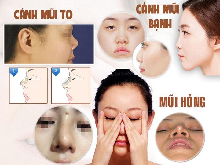 Đối tượng áp dụng thu gọn cánh mũi mà không cần phẫu thuật