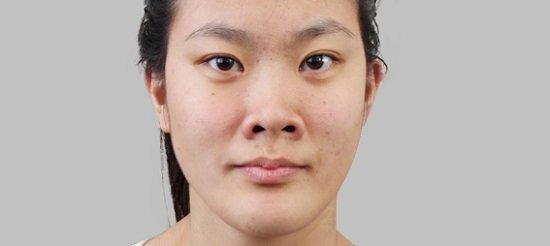 Hà Thanh - Giải đáp mũi hếch có xấu không