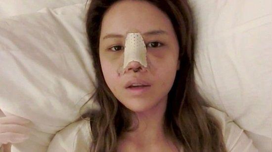 Những tác hại của nâng mũi có thể gây ra