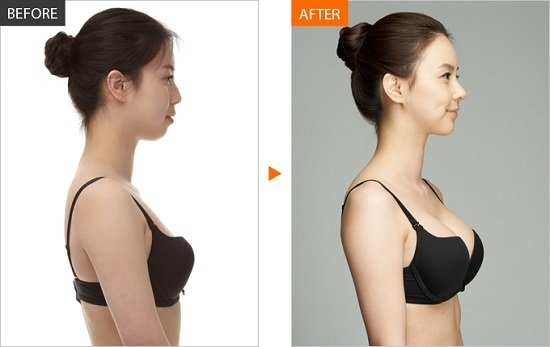 Tư vấn chuyên gia, bác sĩ về nâng ngực bao thì lành, mềm và hết đau