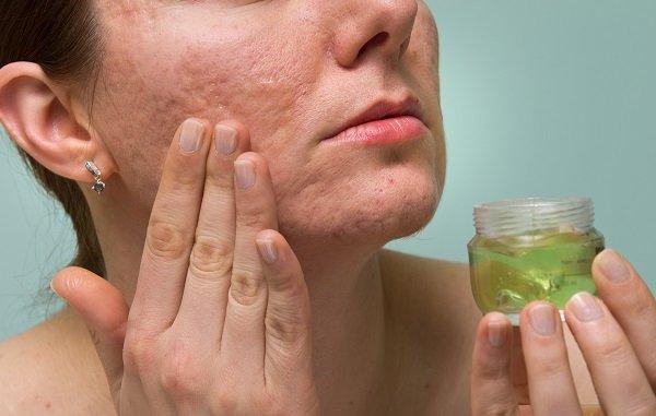 Cách điều trị sẹo lõm bằng phương pháp thông thường