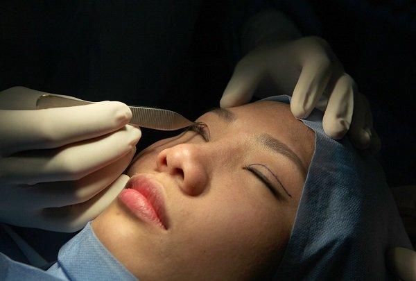 Cách khắc phục mắt to hiệu quả nhất