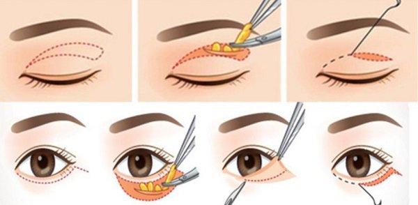 Quy trình thực hiện lấy mỡ mí mắt
