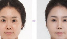 Lấy mỡ mí mắt giúp trẻ hóa đôi mắt hiệu quả cho bạn
