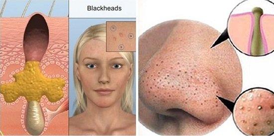 Mụn đầu đen và mụn bọc là nguyên nhân hình thành sẹo lõm