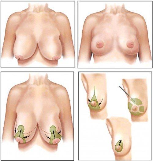 Nâng ngực sa trễ khắc phục hiệu quả ngực chảy xệ sau khi cho con bú