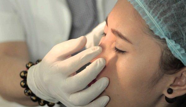 Nâng mũi không phẫu thuật khi nào là an toàn