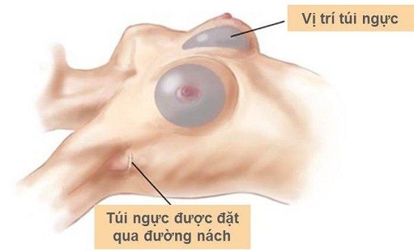 Nâng ngực nội soi đường nách là gì