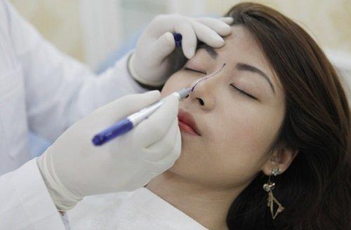 Nguyên nhân mũi bị lệch sau khi nâng mũi