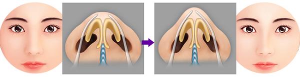 Thu nhỏ gọn đầu mũi có phức tạp như bạn nghĩ