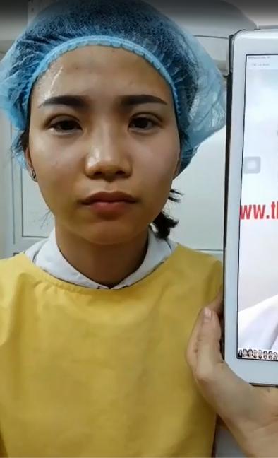 Linh Hương ngay sau bấm mí mắt tại Hà Thanh