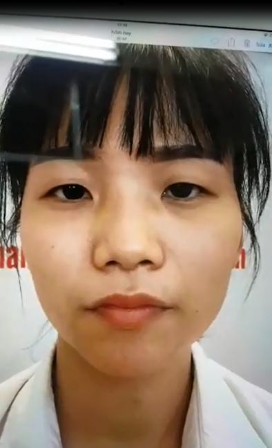 Linh Hương cô gái tự ti với mắt một mí