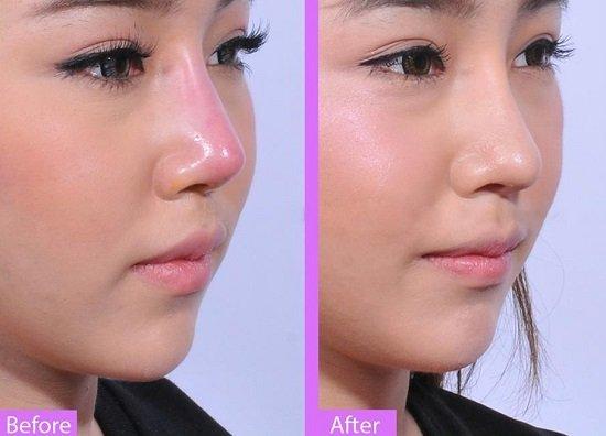 Tháo mũi sau nâng được thực hiện như thế nào