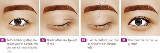 Bấm mí mắt Hàn Quốc được thực hiện như thế nào để biết được mặt lợi và hại của phương pháp