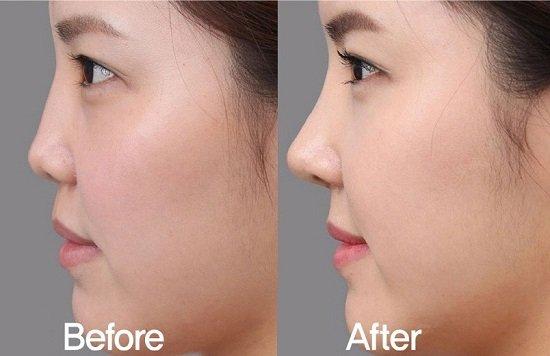 Hiểu rõ phương pháp giúp bạn nâng mũi đẹp và an toàn hơn