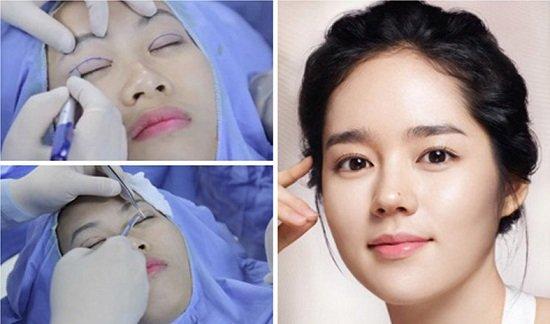 Mặt lợi và mặt hại của phương pháp bấm mí mắt Hàn Quốc